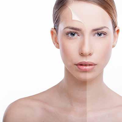 eksfoliasi-facial