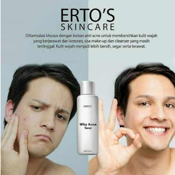 12 Jenis Jenis Jerawat Dan Cara Menghilangkannya: Review Ertos Why Acne Face Toner : Produk Jerawat Yang