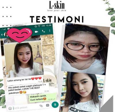 testimoni-l-skin