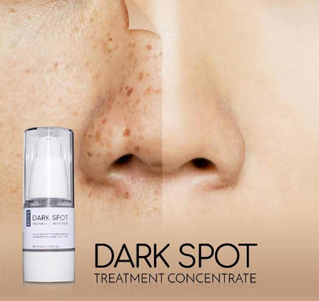 ertos-dark-spot-treatment-concentrate
