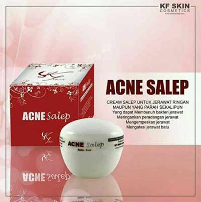Acne-Cream-KF-Skin