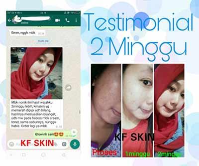 kf-skin-testimoni